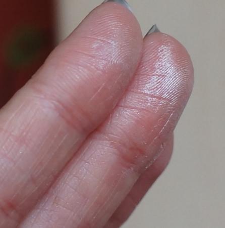 Маленькие твердые комочки под кожей у пениса