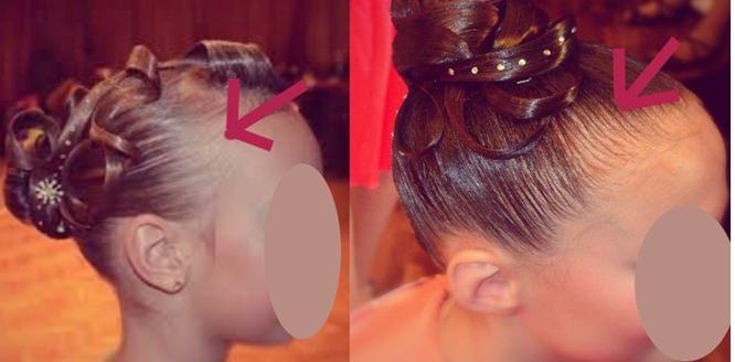камуфлирующая пудра для волос выпадение алопеция